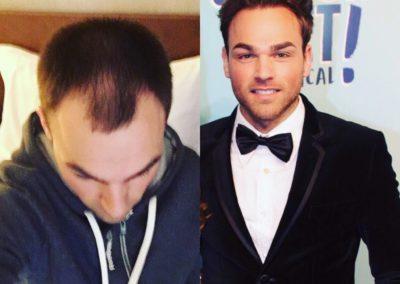 Haartransplantatie voor en na 1
