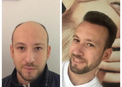 Voor- en na 7 maanden