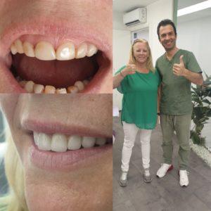 Voorbeeld 2 Tandheelkunde
