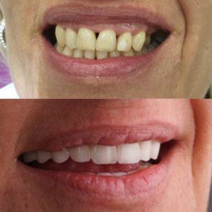 Voorbeeld 1 tandheelkunde