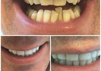 Tandheelkunde - voor en na 2
