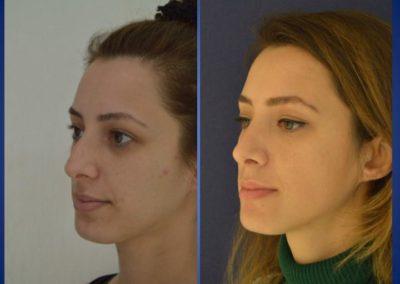 Plastische Chirurgie - voor en na 2