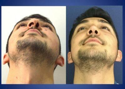 Plastische Chirurgie - voor en na 3