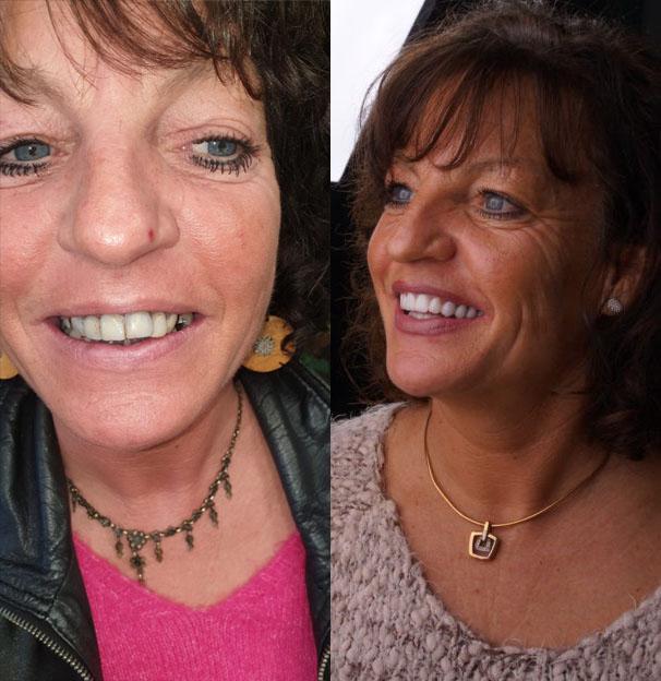 Implantaten met Porseleinen Kronen Karin voor en na