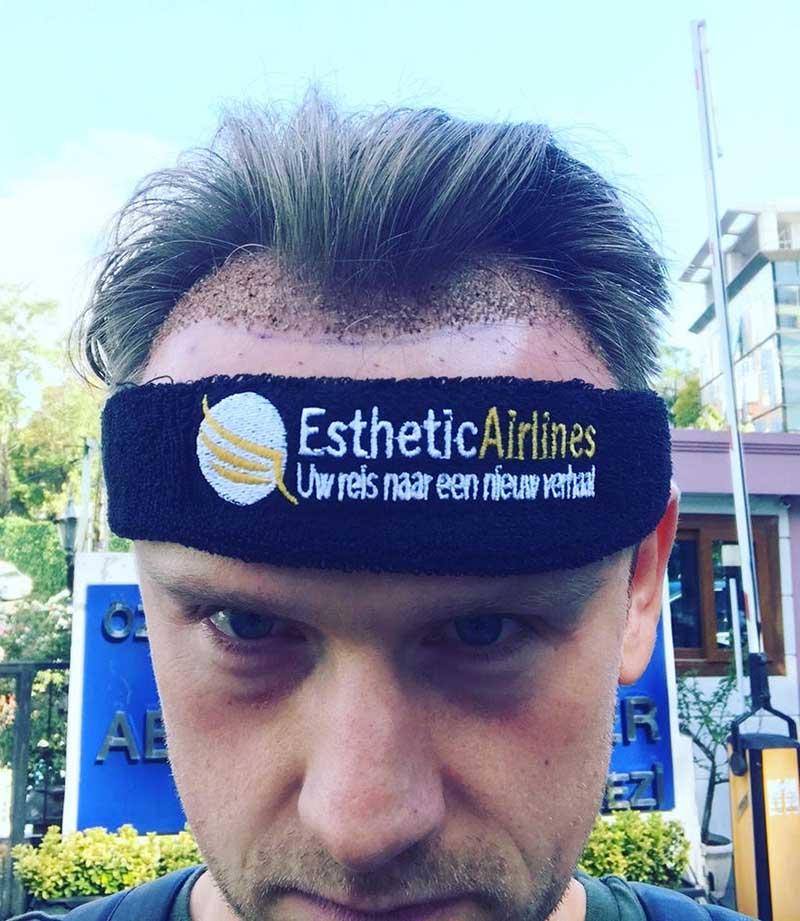 Esthetic Airlines DHI haartransplantatie